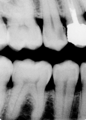 Advanced caries- C4 on number 4