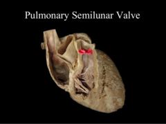 anterior and posterior pulmonary cusps