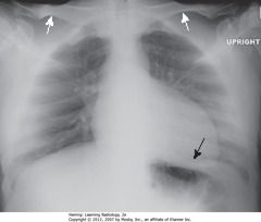 APICAL LORDOTIC CXR • Most frequently inadvertent - patients semirecumbant • WA: clavicles projected above first ribs, normal