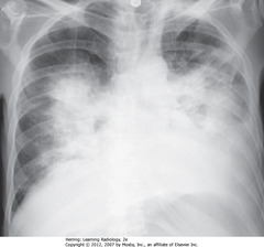BAT-WING OF PULMONARY EDEMA •CXR findings of pulmonary alveolar edema: fluffy, indistinct, patchy airspace densities, often centrally located and not affecting outer third of lung • Suggests pulmonary edema vs other airspace diseases such as PNA • Patterns of cardiogenic and noncardiogenic pulmonary edema overlap • Absence of pleural effusions, absence of fluid in fissures, and normal-sized heart indicate noncardiogenic cause • Dx: septic shock from an overwhelming urinary tract infection