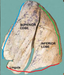 blue line = anterior border of left lung red line = inferior border of left lung green line = posterior border of left lung