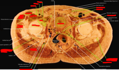 (bone) head of femur, (left) iliopsoas, (right) pubis