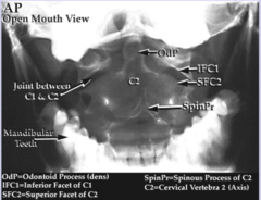 Cervical Spine - AP Open Mouth