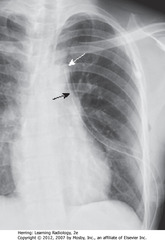 CHEST TUBE - CORRECT POSITION • DBA: side hole of chest tube - stripe breaks at site of side hole • SWA: ideal position - anterosuperior for evacuating PTX and  • Ideal position for draining effusion = posterior (work regardless of where positioned)
