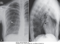 CHEST TUBE IN FISSURE • A - SWA: tube oriented along course of right major fissure • B - SBA: tube oriented along course of right major fissure