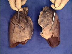 costal surface of the lung
