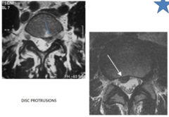 DISC PROTRUSIONS imaging