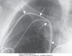 FRACTURED PACER LEAD • Fractures usually occur in generator, tip of lead, or site of venous access • SWA: discontinuity in wire lead in site of venous access to subclavian • DWA: second, intact lead