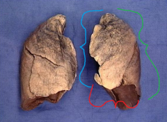 green line = posterior border of the left lung red line = inferior border of the left lung blue line = anterior border of the left lung