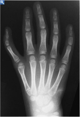 Holt Oram Triphalangeal thumb