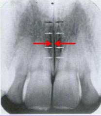 intermaxillary suture (variation of normal, not always seen)