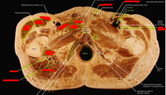 (left) pectinius (middle) adductor brevis, (most right) adductor longus