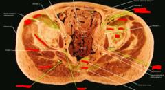 (left) pubis,  (right) ilium,  (center) head of femur,  (bottom) ischium