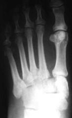 Lisfranc Fracture/dislocation