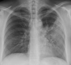Lobar Pneumonia CXR
