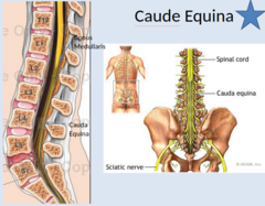 Lumbar Spine Anatomy