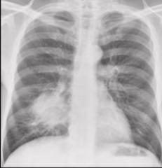 Lung Cancer CXR