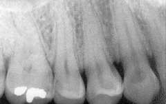 mild bone loss