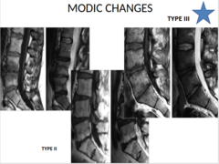 MODIC CHANGES Type III