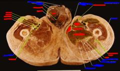 (most left) gracilis,  (top) adductor longus  (middle) adductor brevis  (bottom) adductor magnus