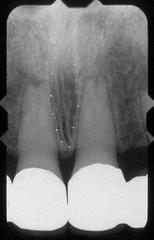 nasopalatine canal  (terminates in incisive foramen, not always seen)