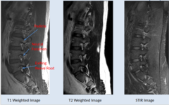 Normal MRI Lumbar Spine - Intevertebral Neural Foramina