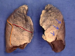 oblique fissure of left lung