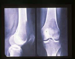 Osteolytic Metastatic Disease (Geographic)
