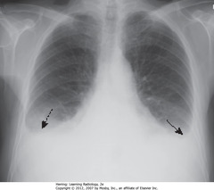 PLEURAL EFFUSIONS IN CHF • BAs: bilateral pleural effusions • Usually bilateral in CHF, may be symmetric, w/right side slightly larger • Unilateral, L pleural effusion can happen in CHF, but should suspect another cause - ex. metastatic disease