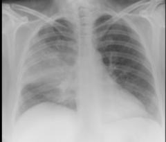 Pneumonia CXR