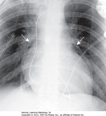 PNEUMOPERICARDIUM • SWA: visible parietal percardium outlining air around heart in pericardial space - indicates pneumopericardium • Air does not extend above reflection of aorta and main pulmonary artery • Pneumopericardium in adults usually from trauma