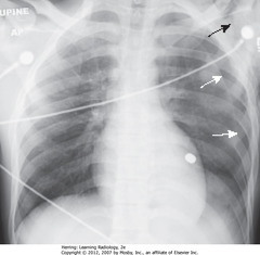 PTX WITH NO SHIFT • SWA: Large L PTX - with no shift of heart or trachea to right • SBA: SQ emphysema in region of left shoulder • Bullet superimposed on heart