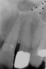 radiopaque inverted Y present in the lateral canine area-important for people with no teeth lookin for new teefff