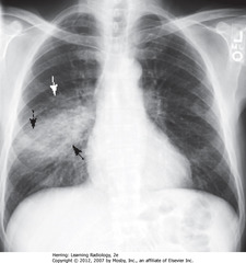 RLL PNA • BA: increased opacification in right midlung field • WA: indistinct margins, characteristic of airspace disease • DBA: minor fissure bisects disease - PNA in superior segment of RLL • RH border, R Hd visible (disease not in contact)