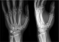 Rolando Fracture (Comminuted Bennetts)
