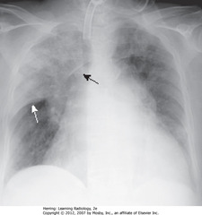 RUL PNEUMOCOCCAL PNA • Airspace disease in entire RUL • SWA: Minor/horizontal fissure makes sharp margin on inferior aspect of PNA • SBA: border of ascending aorta where fluid-density of PNA silhouettes it