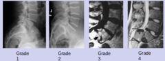 stable grade 1 retrolisthesis Grade 1 retrolisthesis of l5 on s1  16 cm and appears stable in flexion  2006 showed a grade 1 retrolisthesis of l4 to the l5 with suggestion of.