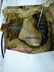 sternocostal surface of the heart