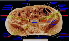 (top) external iliac artery, (middle) internal iliac artery, (bottom) gluteus maximum