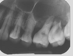 vertical beam angulation problem