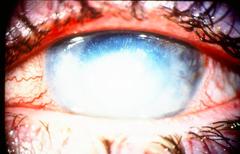 acanthamoeba (keratitis)