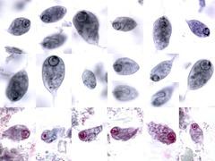 Chilomastix Mesnili troph
