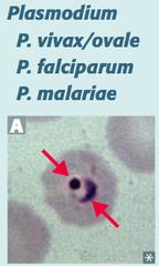 Name the disease caused by plasmodium.