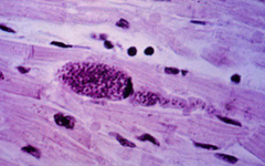 toxoplasma gondii (cyst in muscle)