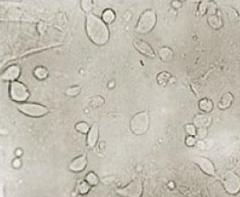 trichomonas vaginalis  (troph in discharge sample)