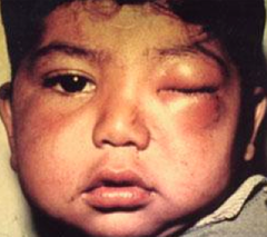 trypanosoma cruzi (chagas disease)