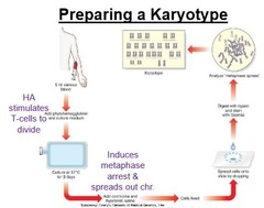 What is a karyotype? How is it prepared?