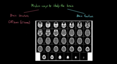 Different way to see the structure of a Brain  1) CT scan
