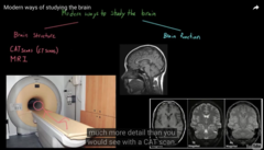 Different way to see the structure of a Brain  1) MRI